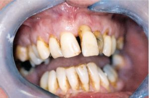 Bridgework at Care Dental Leicester - Case 1