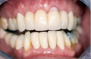 Bridgework at Care Dental Leicester - Case 1.1