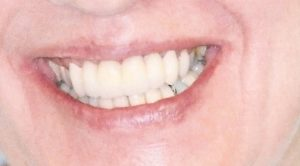 Bridgework at Care Dental Leicester - Case 1.2