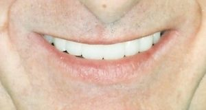 Dental Implants at Care Dental Leicester - Case 1.2