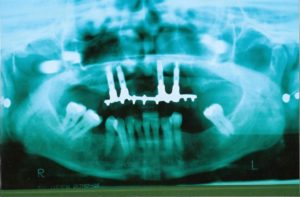 Dental Implants at Care Dental Leicester - Case 5