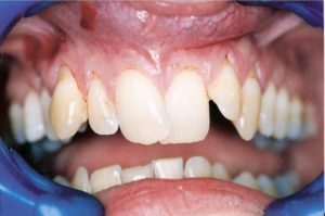 Dental Veneers at Care Dental Leicester - Case 1