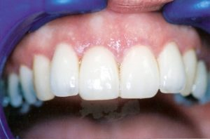 Dental Veneers at Care Dental Leicester - Case 1.1