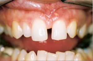 Porcelain Veneers at Care Dental Leicester - Case 2