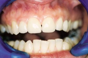 Porcelain Veneers at Care Dental Leicester - Case 2.2