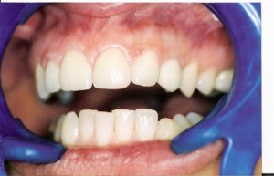 Porcelain Veneers at Care Dental Leicester - Case 2.3