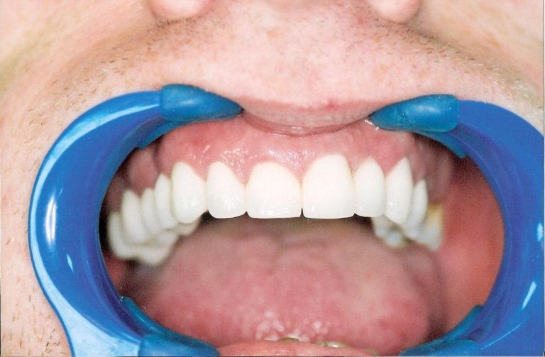 Full Mouth Rehabilitation Leicester Case 2